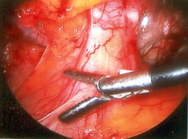 hernia_laparoscopic